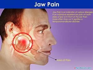 wisdom teeth pain relief help