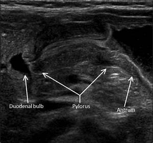 How To Find The Pylorus With Ultrasound