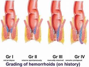 Hemorrhoids-