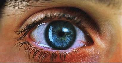 Eyes Eye Weed Marijuana Cannabis Drugs Drug