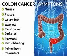 Résultat d'images pour cancer colorectal symptômes