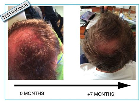 spironolactone hair loss before and diffuse hair loss check your zinc levels see photos