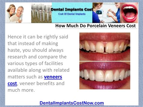 How Much Do Cost by How Much Do Porcelain Veneers Cost
