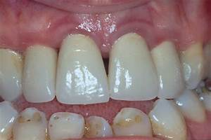 Gingivitis Gums Images - Reverse Search