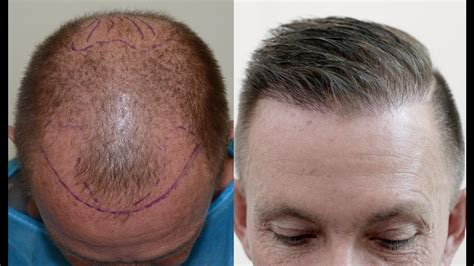 Hair transplant results after 1 year - YouTube