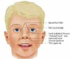 learn the basic pathology of klinefelter syndrome http ...
