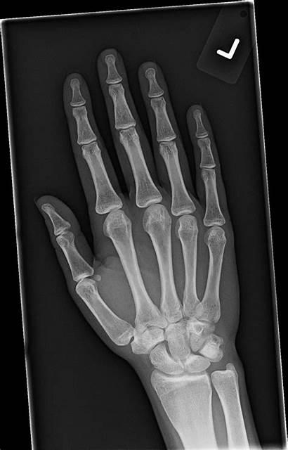 Hand Xr Imaging Radiology Charter Orthopedic Phone