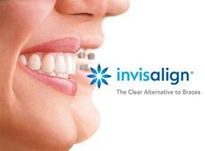 Teeth Braces Invisalign