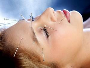 Acupuncture For Kids Deemed Safe By Pediatricians