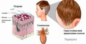 Дифференциальная диагностика экземы и псориаза