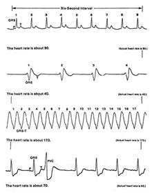 Abnormal Heart Rhythm Strips