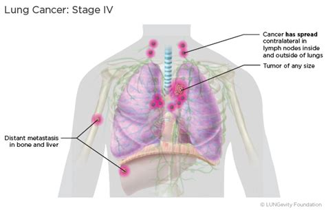 Lung Cancer Staging  Lungevity Foundation. Thank You Email Template After Meeting. Resume Fill In Format Template. Surprise Party Invitation Templates. Free Gift Certificate Templates. Teaching Assistant Covering Letter Template. Sample School Psychologist Resumes Template. German Cover Letter Example. Refinance Mortgage Loan Calculator Template
