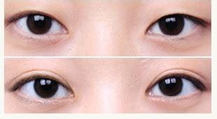 夏季做双眼皮好不好,会不会感染发炎-河南整形美容医院