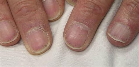 splinter hemorrhages  symptoms treatment splinter