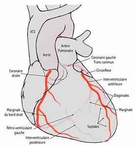 Bolile coronariene - sfatul medicului