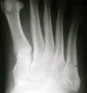 Foot Fracture 5th Metatarsal