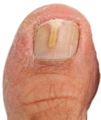 Toenail Fungus Symptoms  Nail Fungus. Demolition Signs. Stroke Like Signs Of Stroke. Cool Floor Signs. Neurological Signs. Ebola Signs. Number 33 Signs Of Stroke. Archetype Signs. Pet Signs Of Stroke