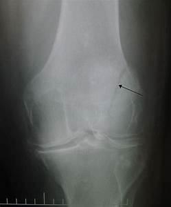 File:Patella fracture.JPG - Wikimedia Commons