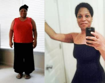Learn about insurance for weight loss surgery (bariatric surgery). Atlanta Bariatrics - Free Insurance Check - Bariatric Surgery Source