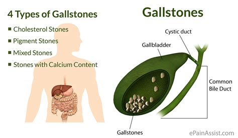 What Are Gallstonestypescausessymptomstreatmentrisk