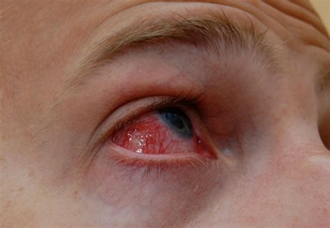 Conjunctivitis Causes, Treatment, Symptoms And Risk. Esophageal Sphincter Surgery. Auto Insurance Lowest Rates Barnes And Diehl. Email Archiving Policy Nissan Skyline Gtr R33. Best Medicine Universities Chase Studen Loan. Sap Business Analyst Salary Dmdc Help Desk. Art Institute Of Dallas Tx Meaning Of Tutor. Gia Certified Diamonds Wholesale. Kaplan University Psychology Masters