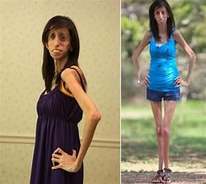 Skinniest Person in the World - Lizzie Velasquez ...