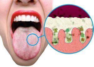 Symptomen ketose