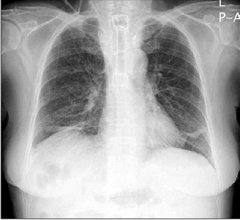 chest  ray finding esophageal stent  observed