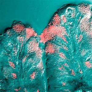 Mucus Wikipedia