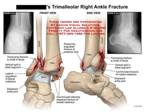 Best 25+ Ankle Fracture Ideas On Pinterest