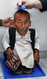 A big reception for world's smallest man: Planet's tiniest ...