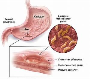 Заболевание печени лечение препараты