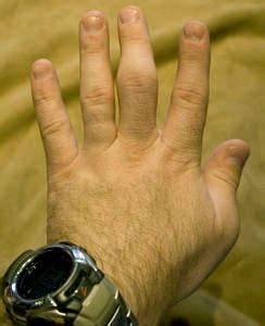 Боли в суставах рук после холода