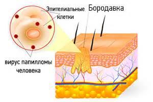 Медикаментозное внутривенное лечение папиллом