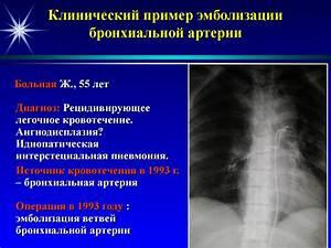 При высоком давлении и сердцебиение лечение