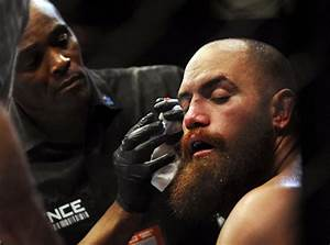 Video: Travis Browne on broken bones, prediction for ...