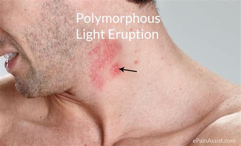 Pmle Images Solar Urticaria Vs Polymorphous Light Eruption Www