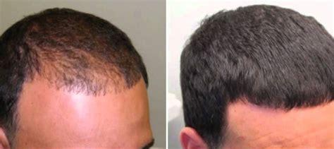 hair loss pills for women