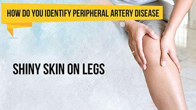 How Do You Identify Peripheral Artery Disease?  Kauvery Hospital