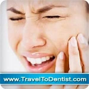 Douleurs Dents De Sagesse : extraction dentaire motifs douleur recommandations apr s l 39 extraction ~ Maxctalentgroup.com Avis de Voitures