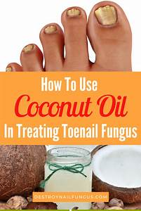 5 Amazing Ways To Use Coconut Oil For Toenail Fungus