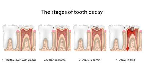 tooth fillings fremont dentist jaspreet harika