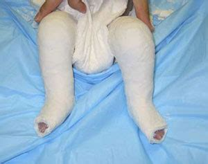 Clubfoot can affect one foot or both feet. Ponseti Method for Correcting Clubfoot: Overview for Parents