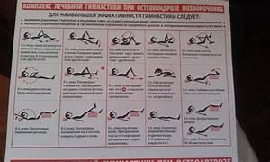 Ишиас остеохондроз симптомы лечение
