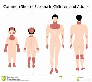 Sites Of Eczema Stock Vector  Illustration Of Inflammation