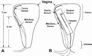 Placement Of Vaginal Sensors In Vaginal Canal Pre   A
