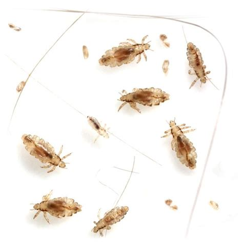 Get rid of human lice