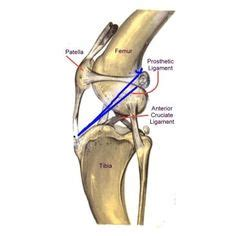 cranial cruciate ligament medical diagram  gaia