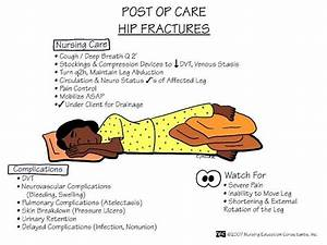 Postop Hip Fracture Care
