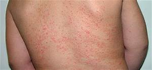 HOME REMEDIES FOR HEAT RASH - TZ Health